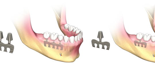 dental-implant-types-blade