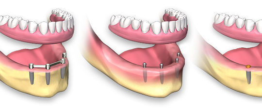 full-arch-dental-implant-removable4