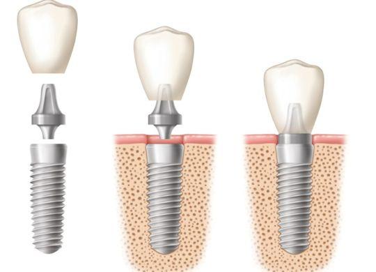impianti dentali prezzo Croazia